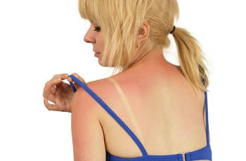 Солнечный ожог, первая помощь, лечение, народные средства