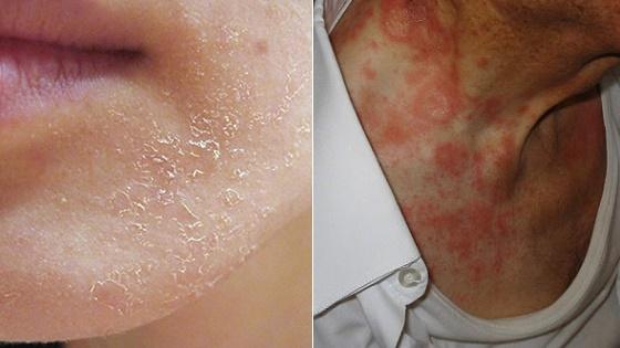 Наиболее распространенным последствием избытка аскорбиновой кислоты является аллергия