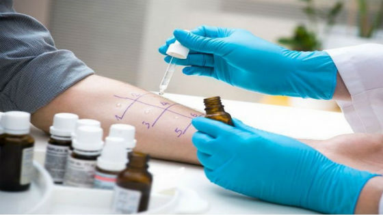 При анафилактическом шоке важно сделать аллергопробы для установления аллергена