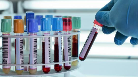 Определение уровня АМГ в крови посредством анализа