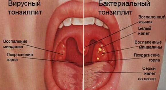 Ангина у детей  лечение симптомы признаки фото