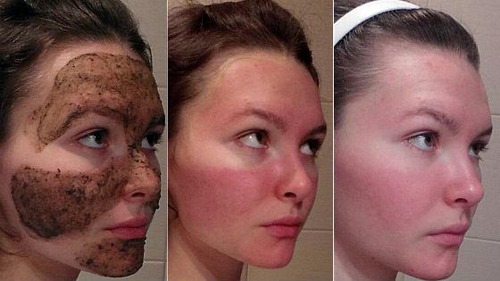Использовать порошок бадяги от кожных проблем можно в виде масок