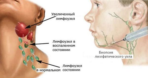 Здоровый и воспаленные лимфоузлы, биопсия