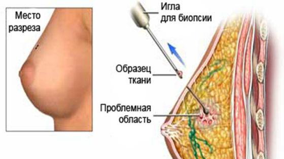 Биопсия как метод обследования груди