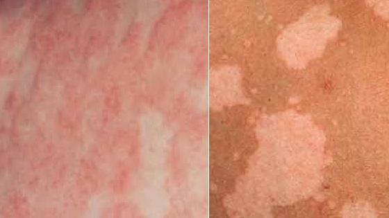 Пятна, вызванные нарушением состава микрофлоры кожи