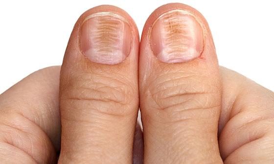 Деформация ногтей при недостатке железа в организме