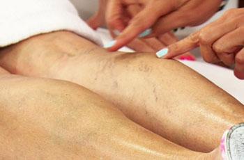 Эхосклеротерапия варикозных вен побочные эффекты