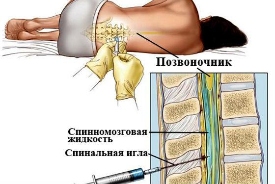 Спинномозговая пункция для диагностики заболевания