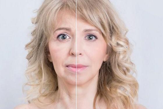 Явный разглаживающий эффект инъекций ботулотоксина