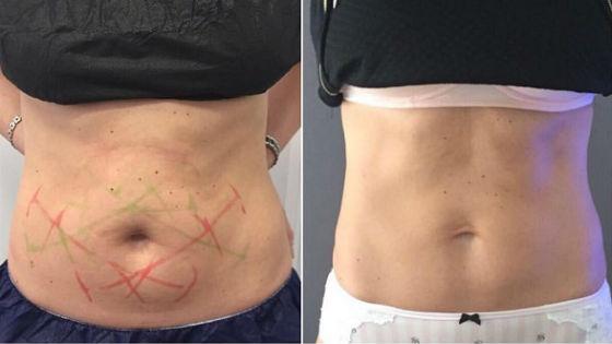 До и после воздействия холодом на жировую ткань