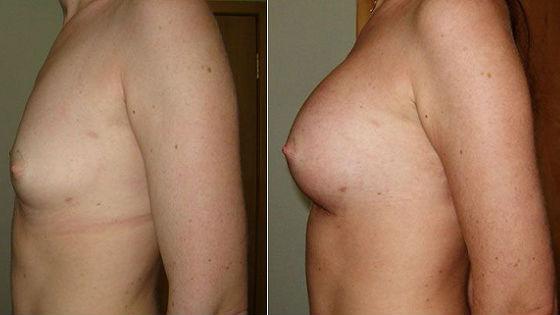 Грудь до и после проведения липофилинга