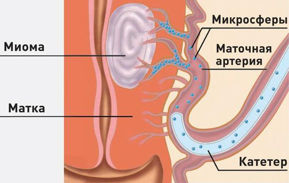 курс лечения паразитов в организме человека