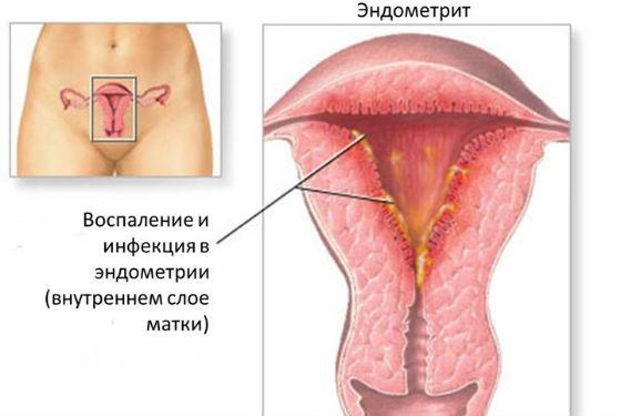 Состояние слизистой матки при эндометрите