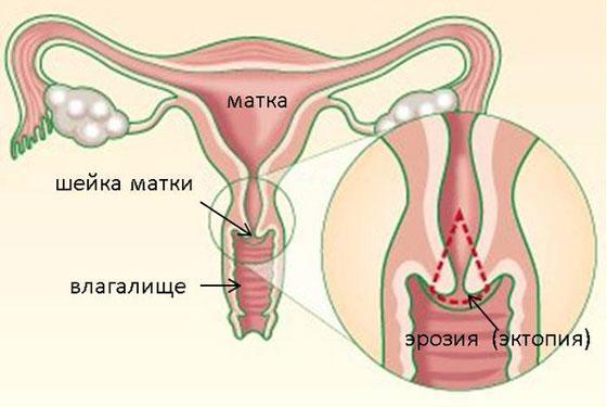 Схема расположения истинной эрозии шейки матки