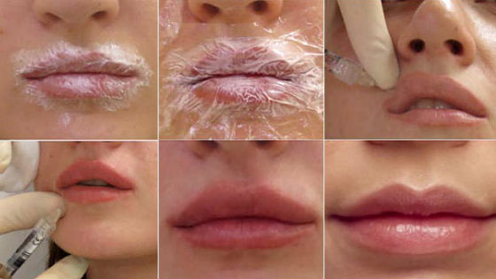 Контурная пластика губ: как проводят, фото, препараты, преимущества и недостатки, противопоказания