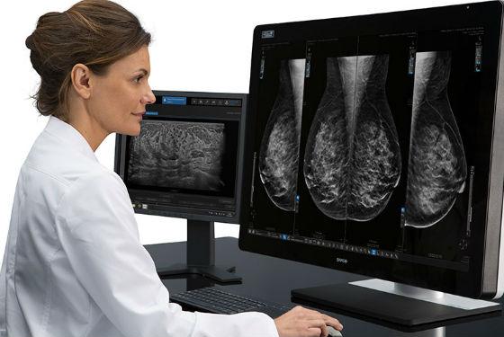 Любого рода отклонения от нормы видны на маммографии