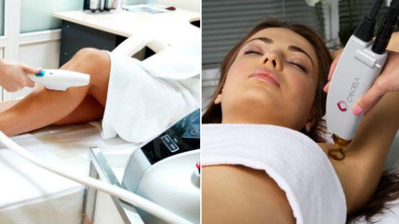 Аппаратное удаление волос фотовспышкой и лазером