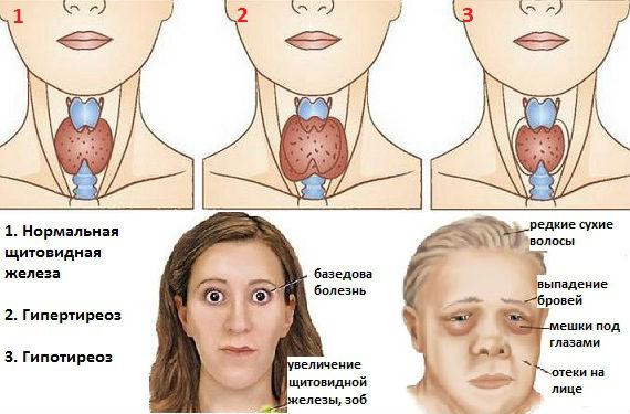 Отклонения в работе щитовидки