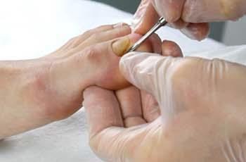 Грибок ногтей на ногах, причины, симптомы, лечение, профилактика