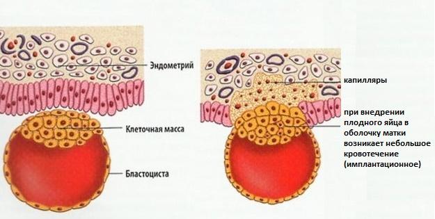 Что такое имплантационное кровотечение