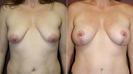 Тубулярная молочная железа до и после коррекции