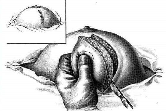 Схема проведения удаления части груди у женщин