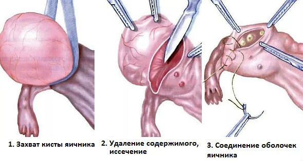 Апоплексия яичника секс