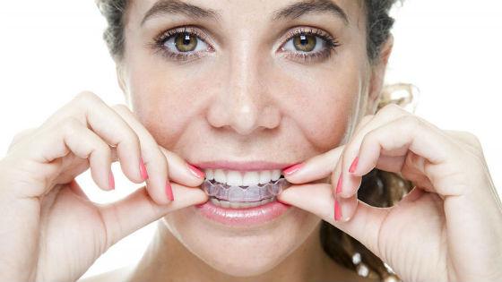 Косметика :: Способы отбеливания зубов в домашних условиях