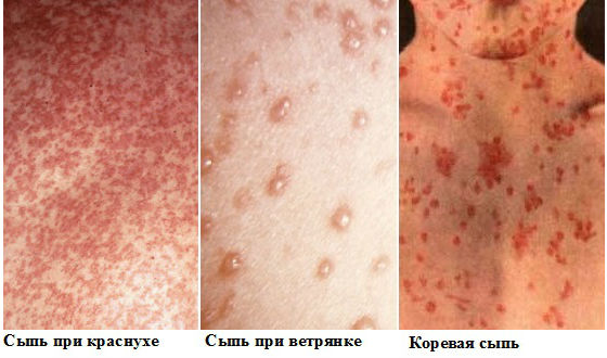 фото сыпи при аллергии