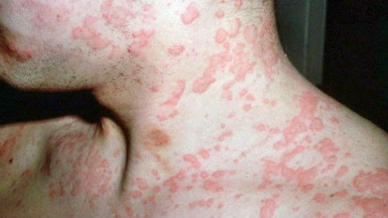 Пятна, возникающие при нарушении обмена веществ в организме