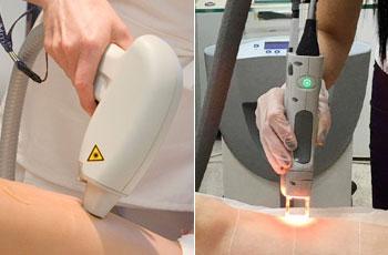 Лазерная эпиляция фотоэпиляция что лучше Лечение волос Розовая улица Чебоксары