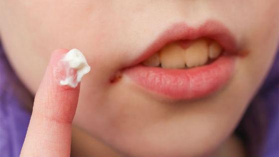Чтобы вылечить воспаление рта, необходимо регулярно смазывать ранки