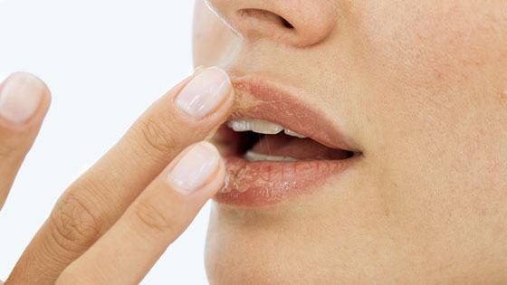 Нанесение медового скраба на кожу губ