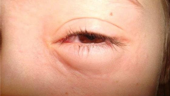 Отекание век у детей может быть симптомом аллергии
