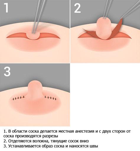 Коррекция втянутого соска с возможностью грудного вскармливания в будущем