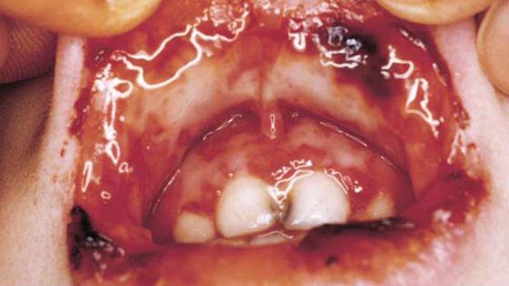 язвенно-гангренозная разновидность воспаления слизистой рта