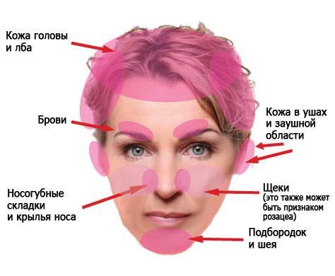 Области поражения себорейным дерматитом кожи головы и лица