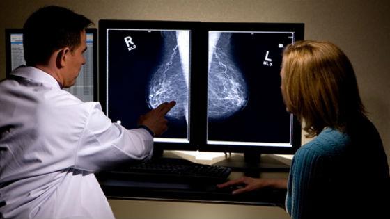 Как выглядяд кальцинаты на маммографии