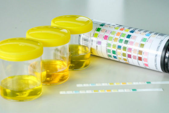 Определить начало прогестероновой фазе можно по моче при увеличении лютеинизирующего гормона
