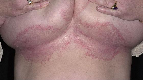 Покраснение и воспаление под грудью