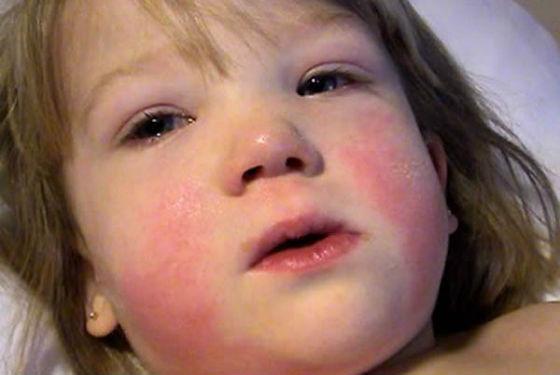 Отекшее лицо и область глаз при мононуклеозе