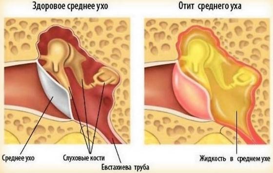 Воспаление в среднем ухе, средний отит