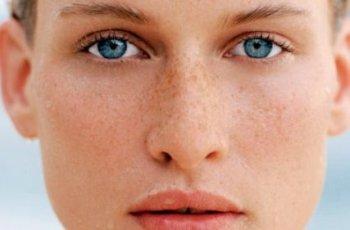 Что можно сделать с пигментацией лица