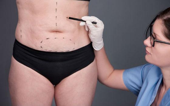 Консультация с косметологом перед процедурой по коррекции фигуры