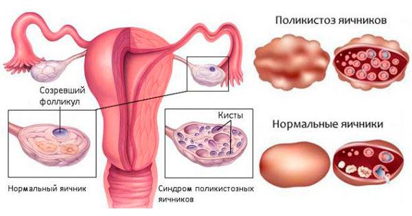 Поликистоз яичников, множественное развитие пузырьков