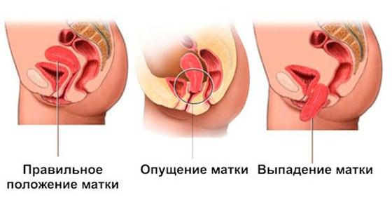 Опущение матки: симптомы, лечение, причины, стадии, осложнения, профилактика
