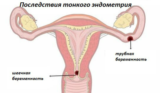 Криоперенос при тонком эндометрии