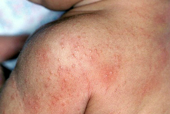 Красная потничка на плечах