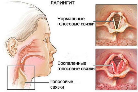 Гортань в нормальном состоянии и воспаленная