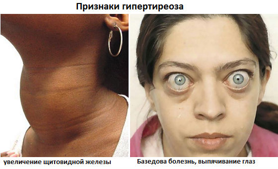Увеличение зоба и выпячивание глаз как признаки гипертиреоза